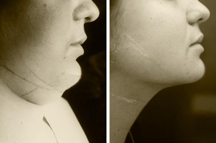 NUOVA LIPOSMART del collo, doppio mento e delle guance